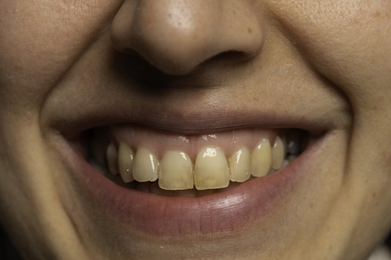 Woman with stained teeth
